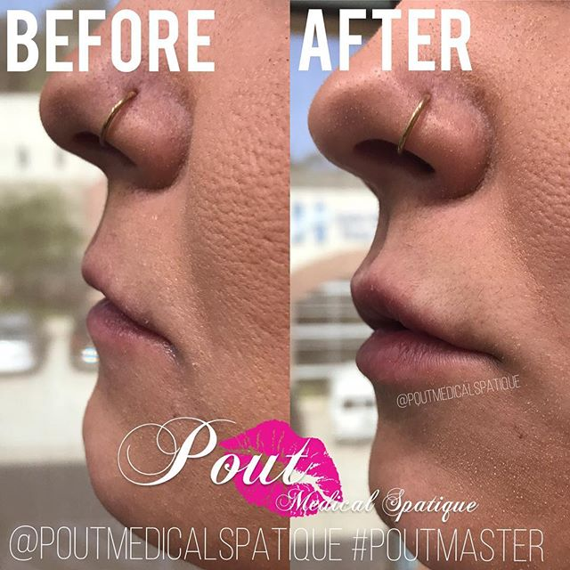 Here at Pout Medical Spatique we offer conservative cosmetic treatments giving you the natural results you're looking for✨ #PoutMaster