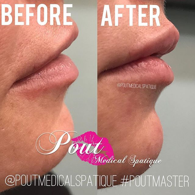 Enhancing our client's natural beauty is always our top priority✨  #poutmaster