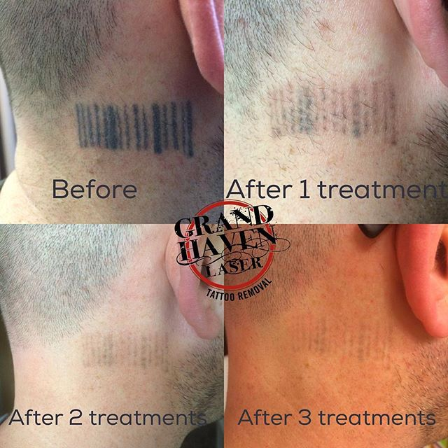Theses progression photos were submitted by our client Jason over the weekend! Great progress after just 3 treatments! #ghlasertattooremoval #lasertattooremoval