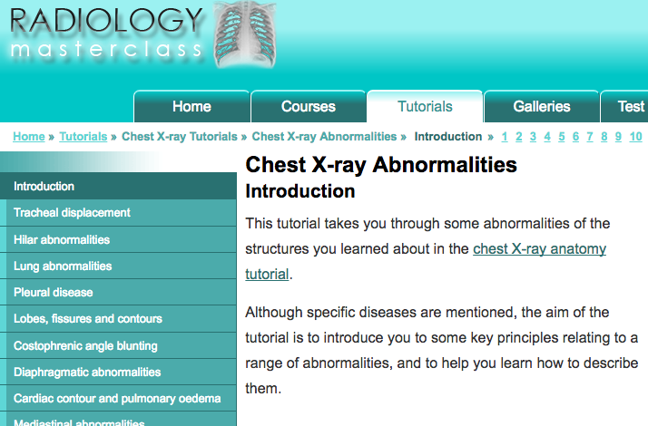 - This tutorial takes you through some abnormalities of the structures you learned about in the chest X-ray anatomy tutorial.Although specific diseases are mentioned, the aim of the tutorial is to introduce you to some key principles relating to a range of abnormalities, and to help you learn how to describe them.