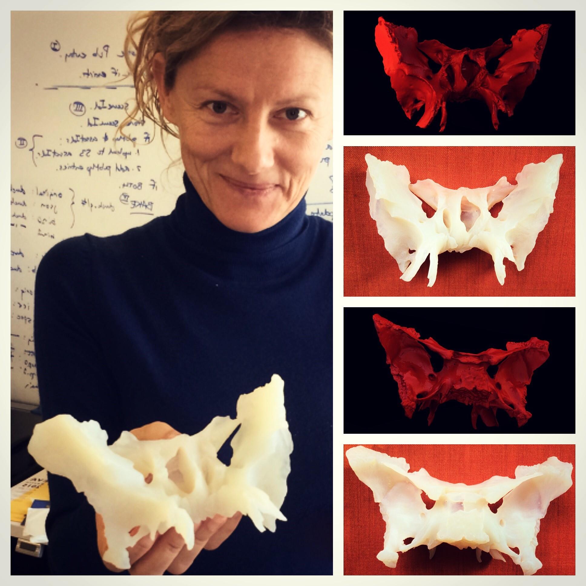 Fig: The Reconstruction of the Sphenoid Bone and its 3D Print made by Tatjana Dzambazova