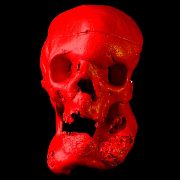 Fig: Acromegalic Skull Reconstruction