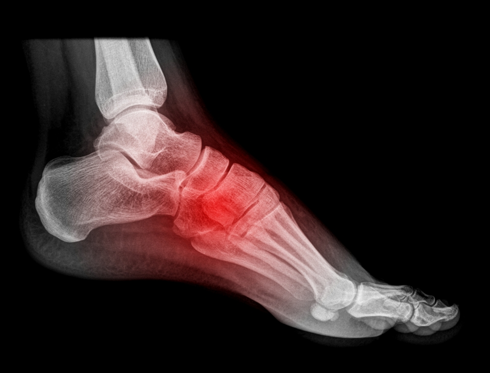foot and ankle injury Jonesboro AR Podiatrist Mark Reiner