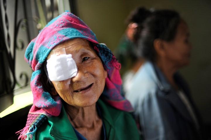 PREVENTABLE BLINDNESS -