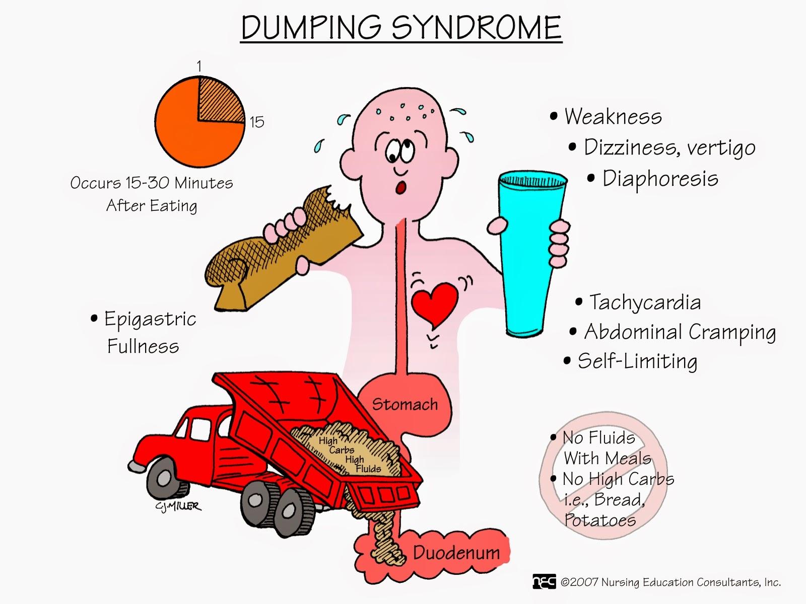 Dumping Syndrome.jpg