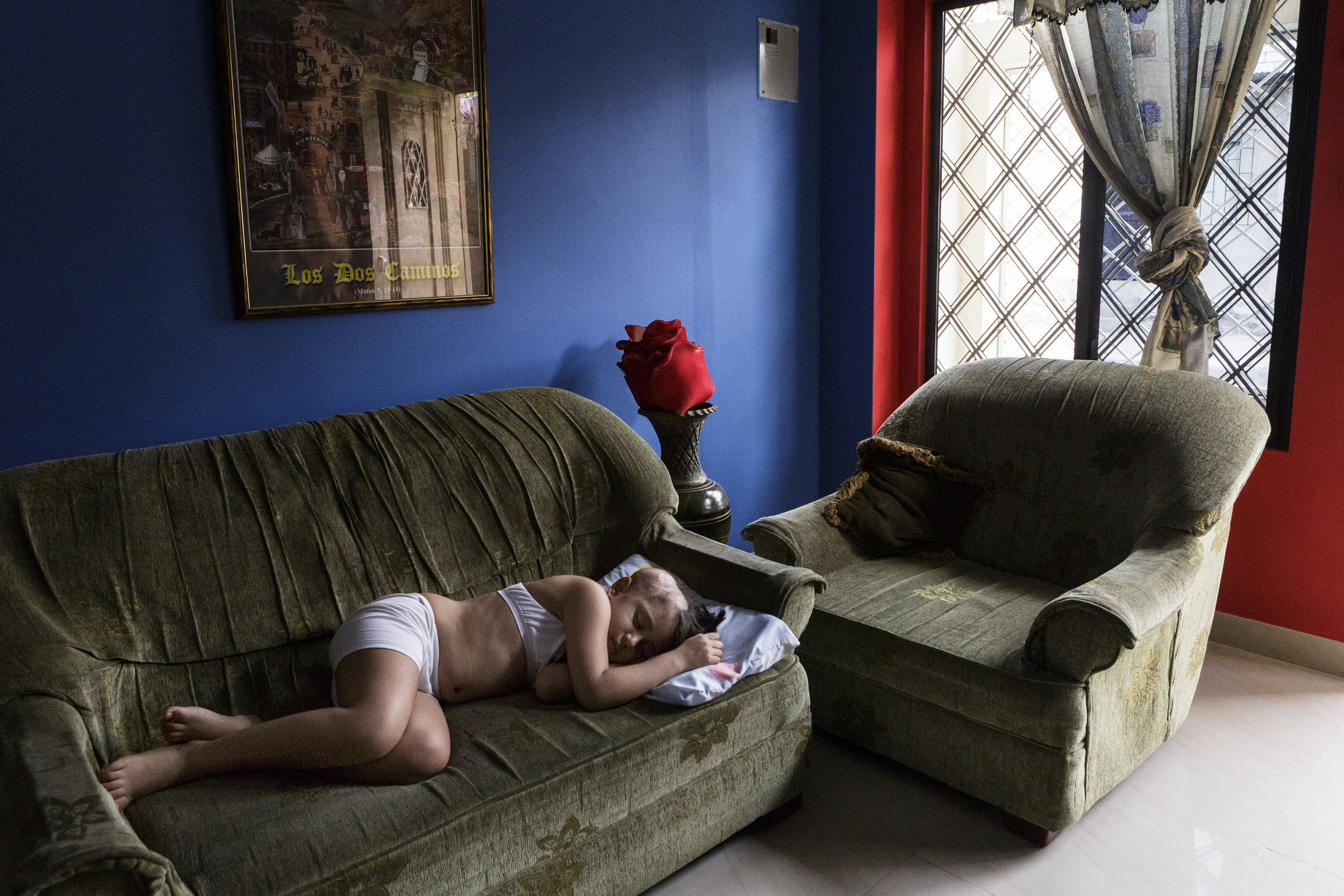 Stephanie Michelle Gallegos Bayas takes a nap in the living room of her family's home in Guayaquil, Ecuador. Four years earlier, doctors misdiagnosed the brain tumor in seven-year-old Michelle's skull as benign.