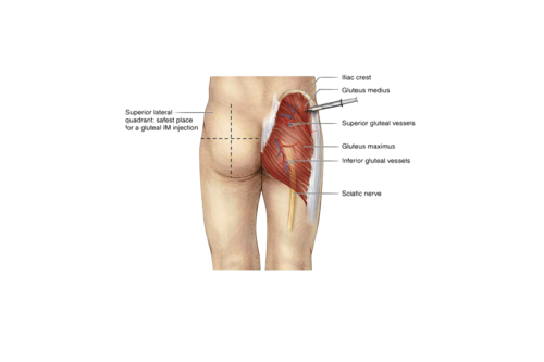 Where to inject steroids in the glute steroid injection sites thigh