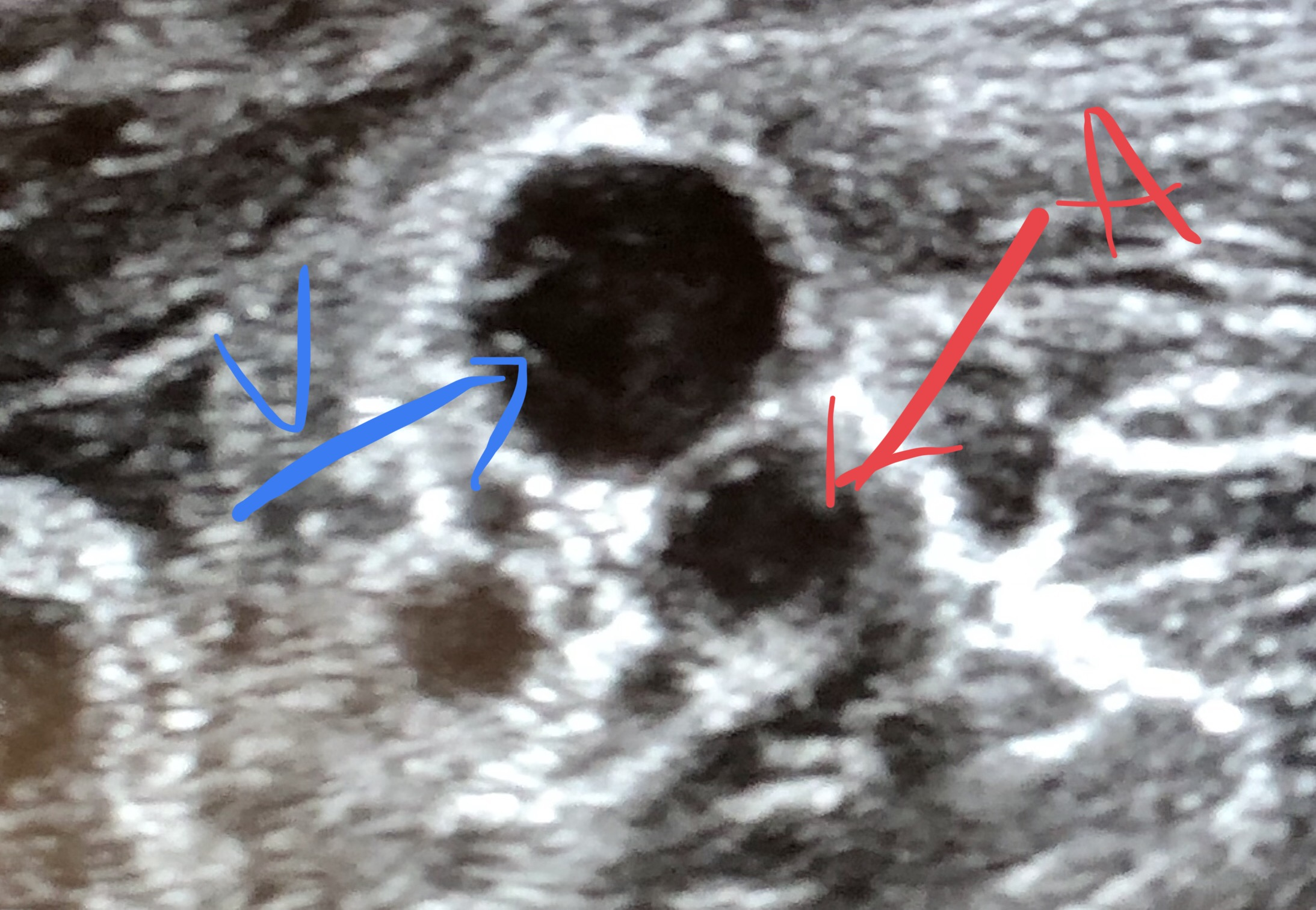 Above: a vein and artery on ultrasound. Veins are usually larger with hypo-echoic walls; when you press down on it, it will easily collapse. Arteries, in contrast, are going to be smaller with  sometimes  hyper-echoic walls (Think PAD). Arteries also pulsate when you push down on them with slight pressure (push down too much and you will obstruct all flow).