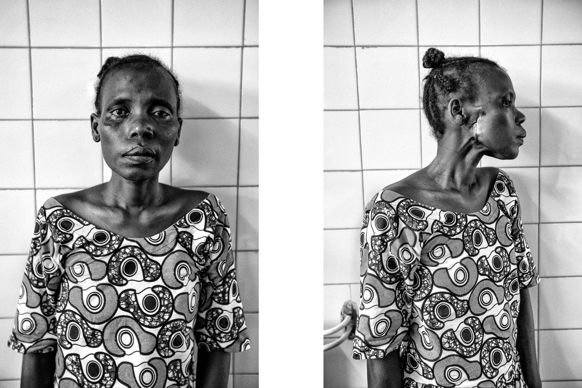 documentary-reportage-24-hrs-gbemontin-healthcare-centre-fabio-burrelli-10.jpg