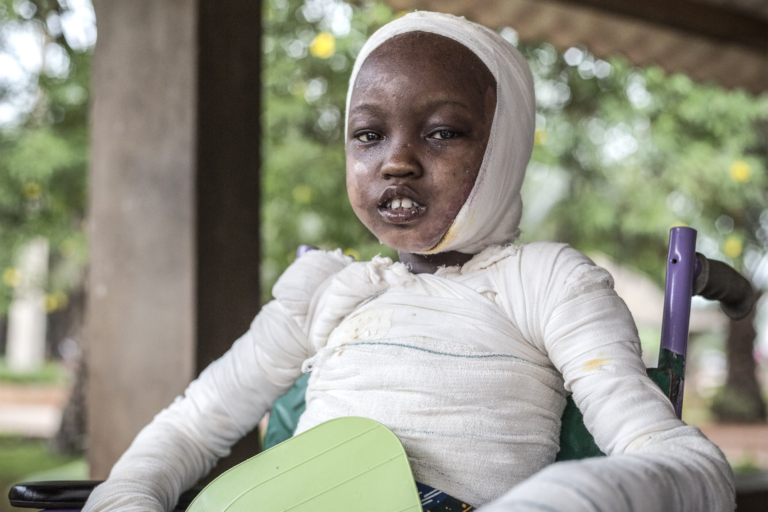 On a Christmas Eve, Fred, a ten-year-old boy arrived at Gbemontin Centre. He was dying as a result of second and third-degree burns of the superior and inferior limbs, the abdomen and shoulders. Severe burn injuries are most frequent in the region. Due to absent or distracted parents, the use of open fire to prepare meals in large pans liable to toppling over, fully synthetic clothing, the heavy presence of contraband bottles of petrol on the streets and inadequate warning and instruction concerning the risks. Fred's case is remembered as being a particularly severe one.