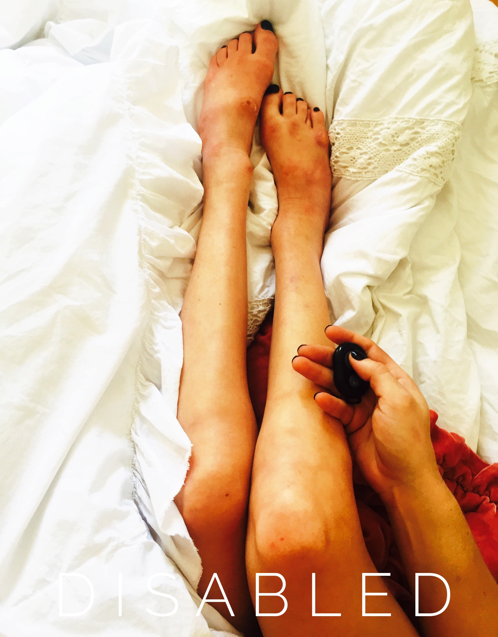 [Image Description: The photo shows Erin's legs and one hand (which holds a small black object), shot from an overhead angle with the knees foreshortened. Her long legs end in twisted ankles and subtly deformed feet decorated with black nail polish. The white rumpled bedsheets and lace beneath her gives the image a sensual feel, as does the visual impact of her flushed golden skin. Sans-serif font reads DISABLED.]