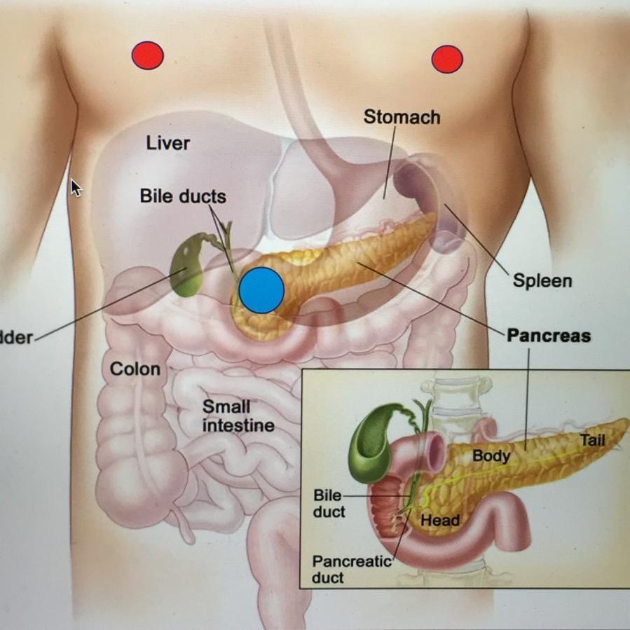 pancreas+tumour.jpg