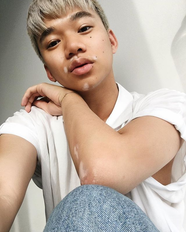 super into this glow and my vitiligo right now -- • • • • • • #photooftheday #minimalist #minimalism #minimal #style #mensstyle #fashion #mensfashion #ootd #ootdmen #look #blogger #fblogger #fashionblogger #selfie #selca #vitiligo #tan #glow #glowup
