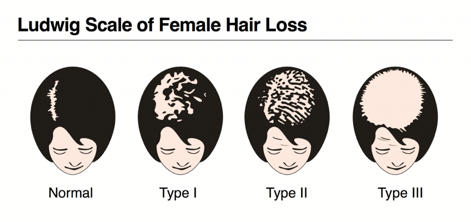 ludwig-scale-of-hair-loss.png