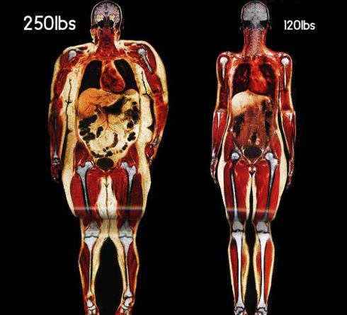 women-body-scans-natl-geographic-obesity.jpg