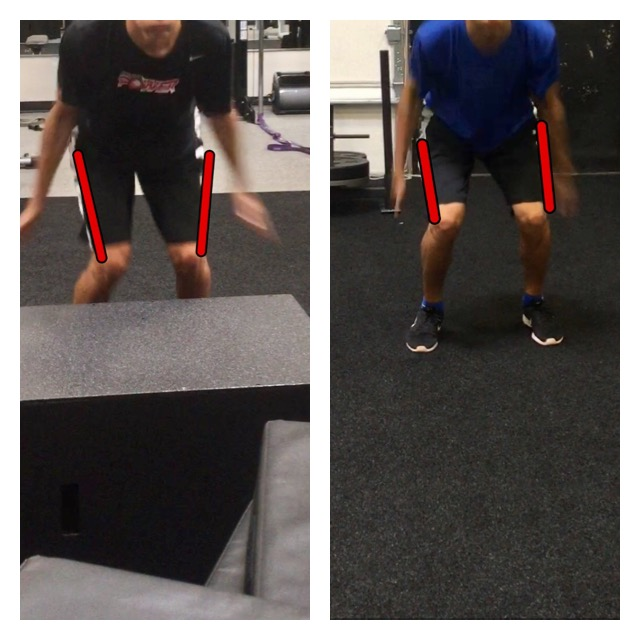 SIGNIFICANT Knee Valgus Improvement after 3 weeks of training