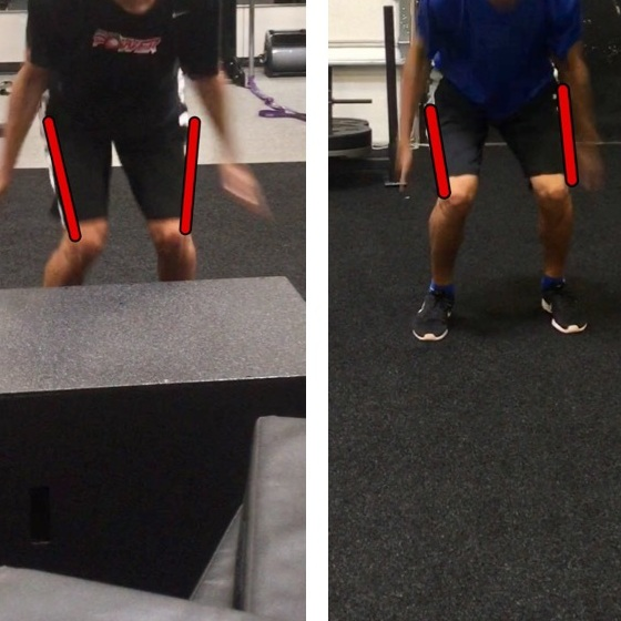Dynamic knee valgus improved over time