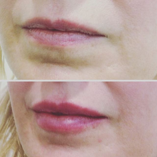 //Natural lip enhancement using 1ml of premium HA dermal filler. Photo taken immediately after treatment so some swelling present . Lips by @bridgetcorby_cosmetic_nurse . #sydneyinjectables #balmainsydney #lips #lipfillers #naturallook