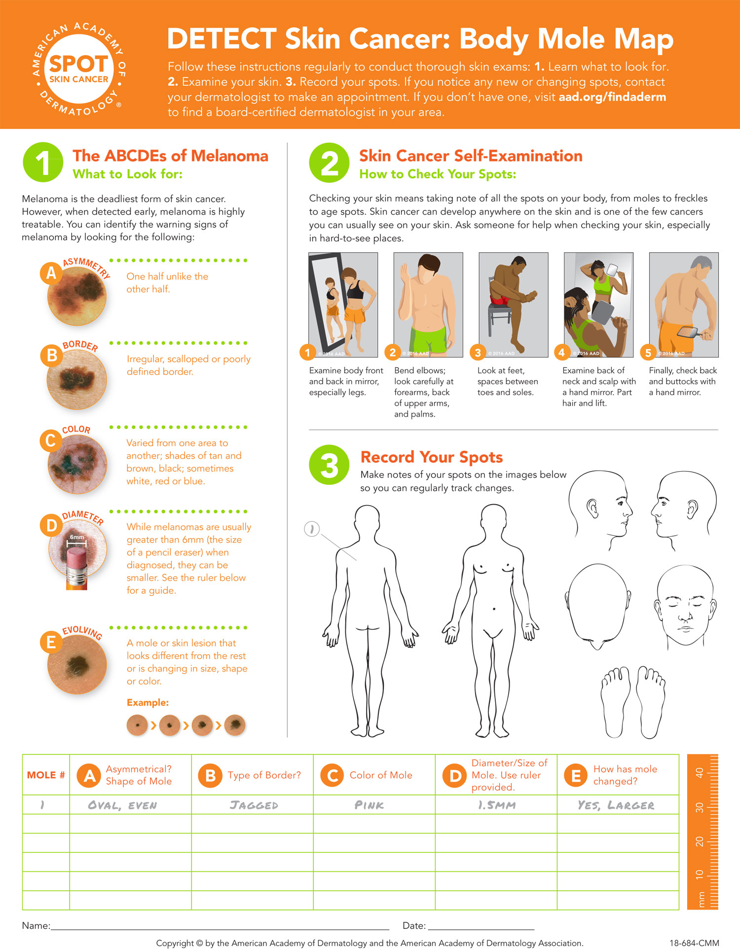 American Academy of Dermatology offers   additional resources to help you detect skin cancer   including a printable version of this Body Mole Map.