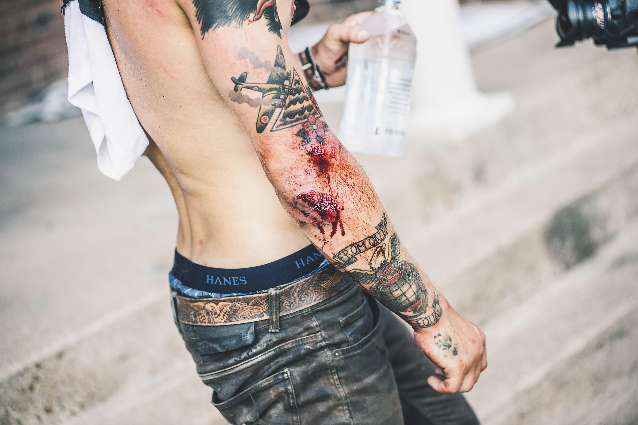 nathan arm blood.jpg