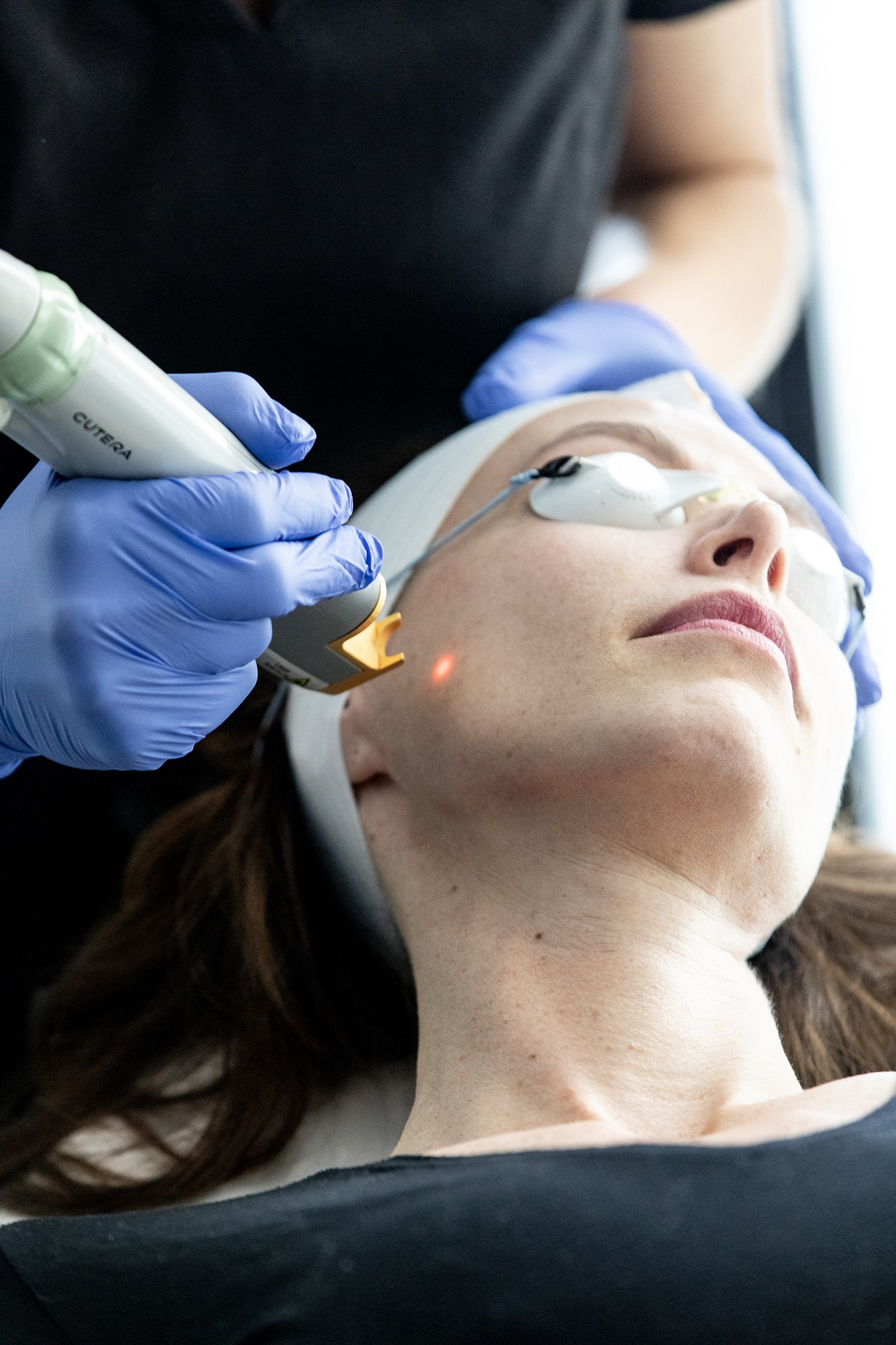 Laser Genesis to promote collagen and skin firming - this laser just feels very warm but isn't at all uncomfortable in my opinion.
