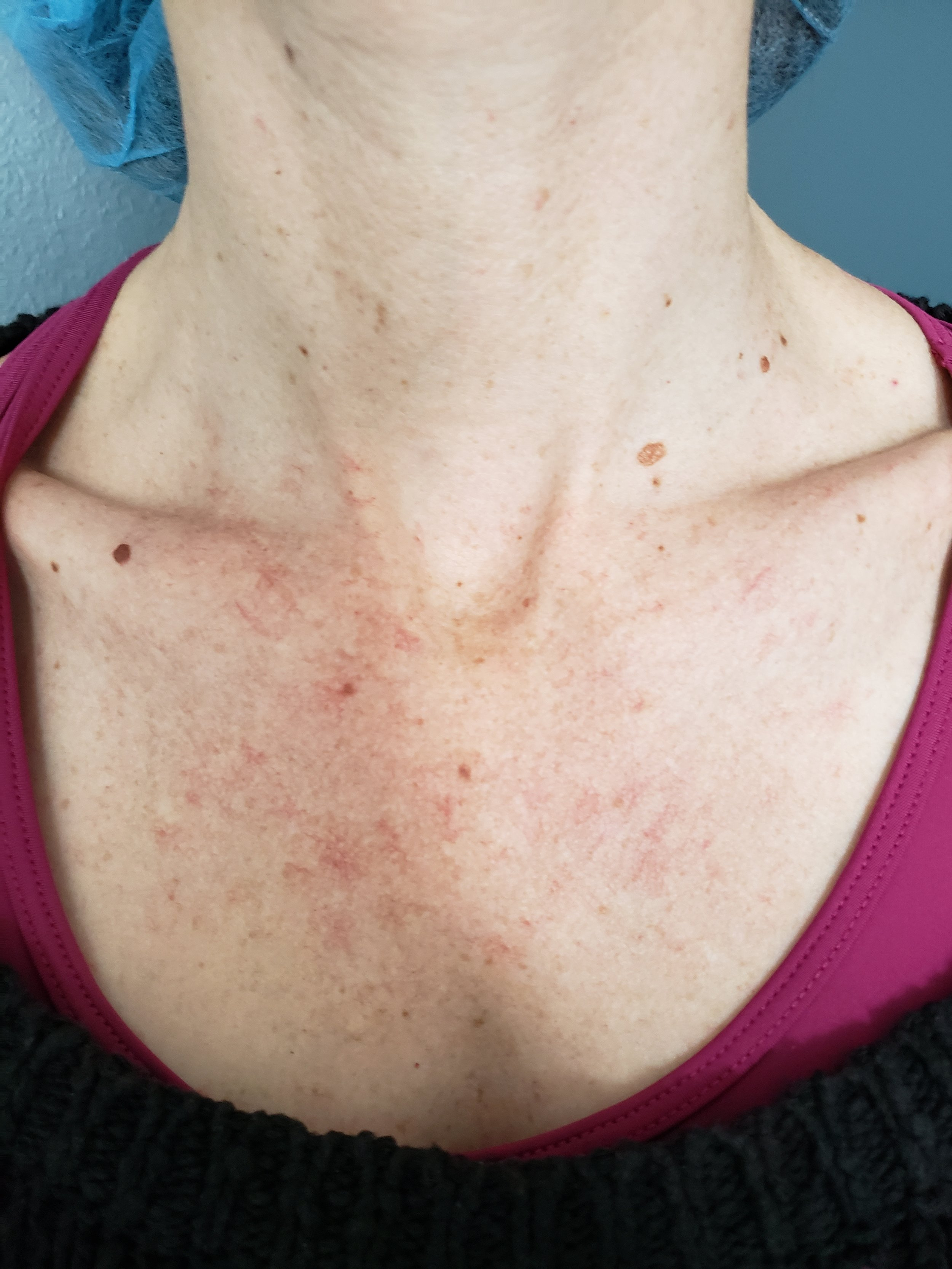 Decolletage before my first treatment. I've had this redness and blotchiness for as long as I can remember.