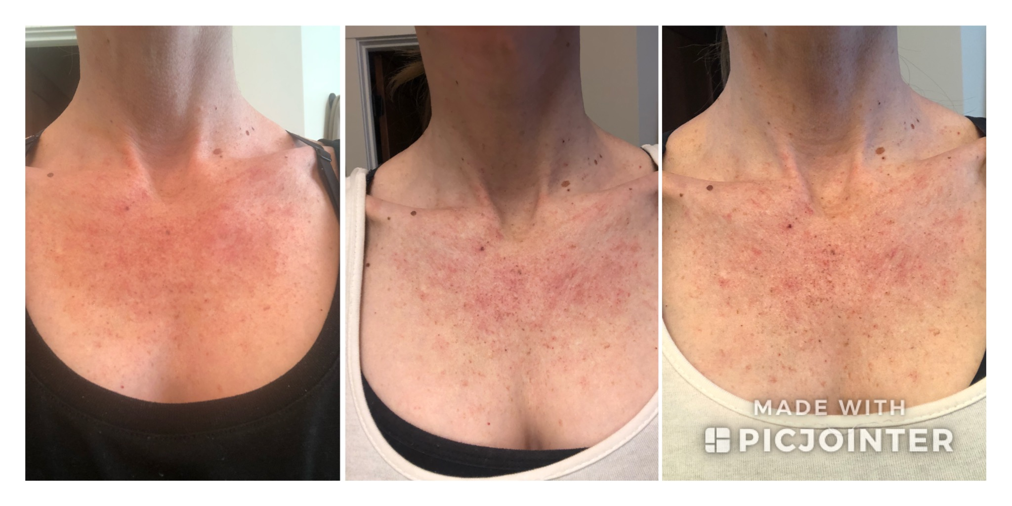 Progression for the first week after my first treatment. It actually took a few weeks for my chest redness to dissapate (probably because I had a lot of it).