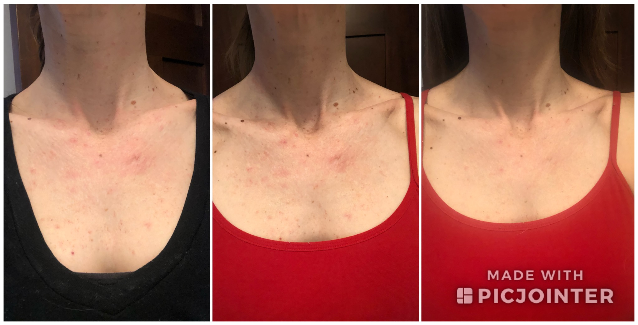 Progression over the first week after my second treatment.