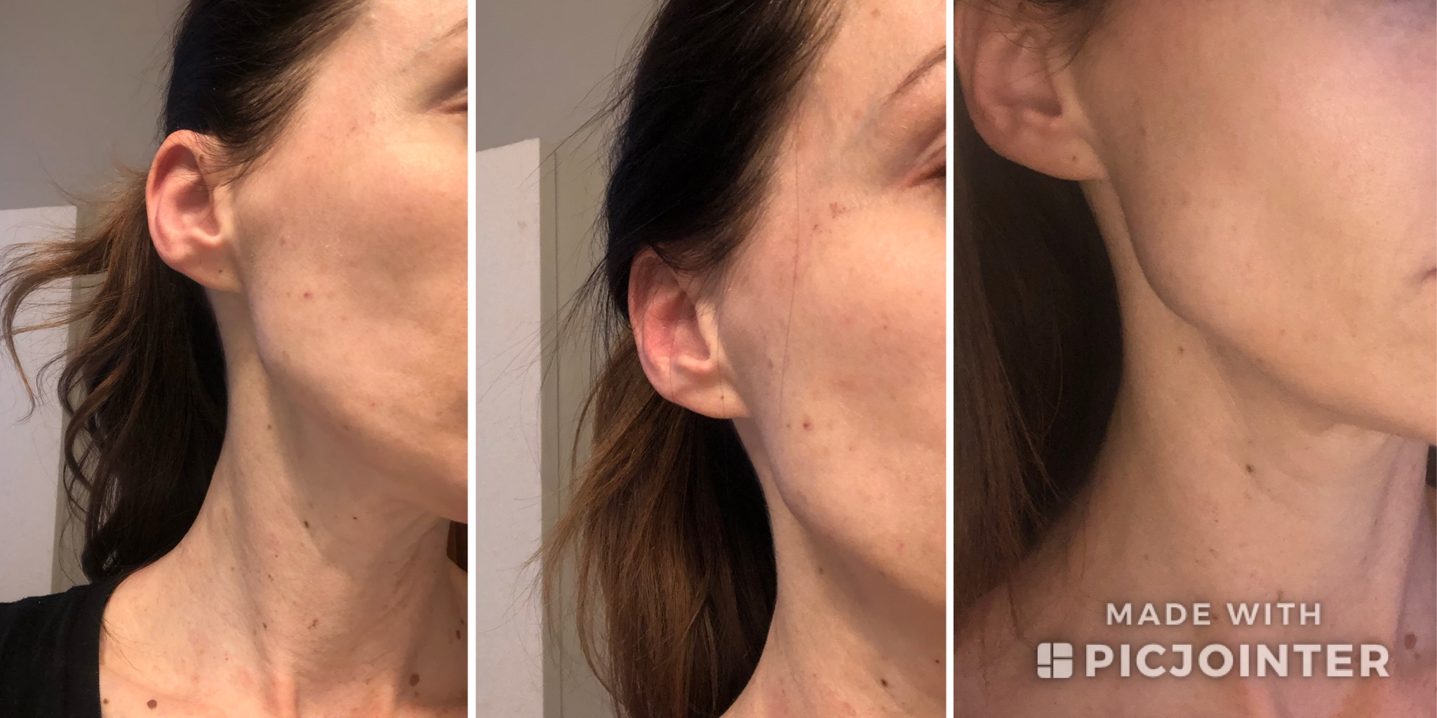 Face progression for the week following my the second session (you can see the slight swelling I tend to get from the IPL in the first photo but it's typically gone within 48 hours). Also the pigment does get darker before it sloughs off which is why it looks at least as noticeable (if not slightly more so) in the second photo.