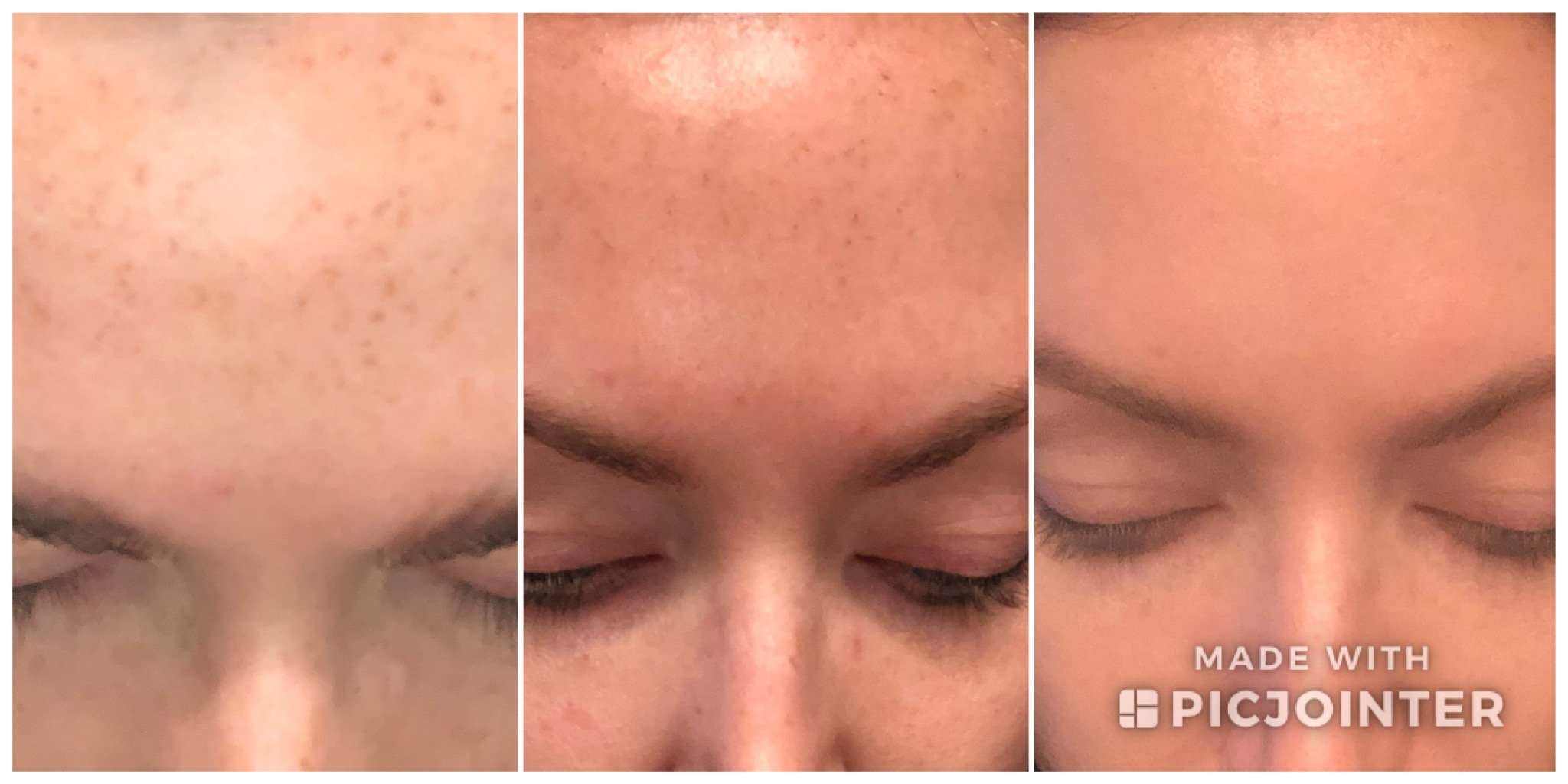 Forehead progression after second session. I actually had a lot of brown pigment come up in this area after my second treatment but by a week after it was almost completely gone.
