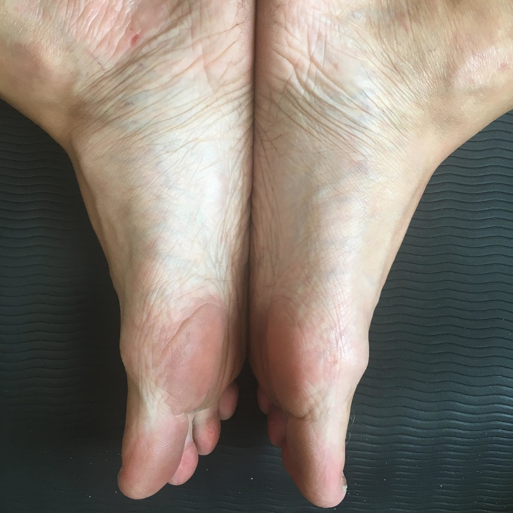 What Do I Do About My Flat Feet? - by abbie galvin