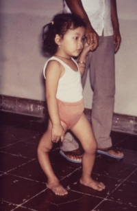 Polio victim showing deformity of leg from CDC Public Health Library