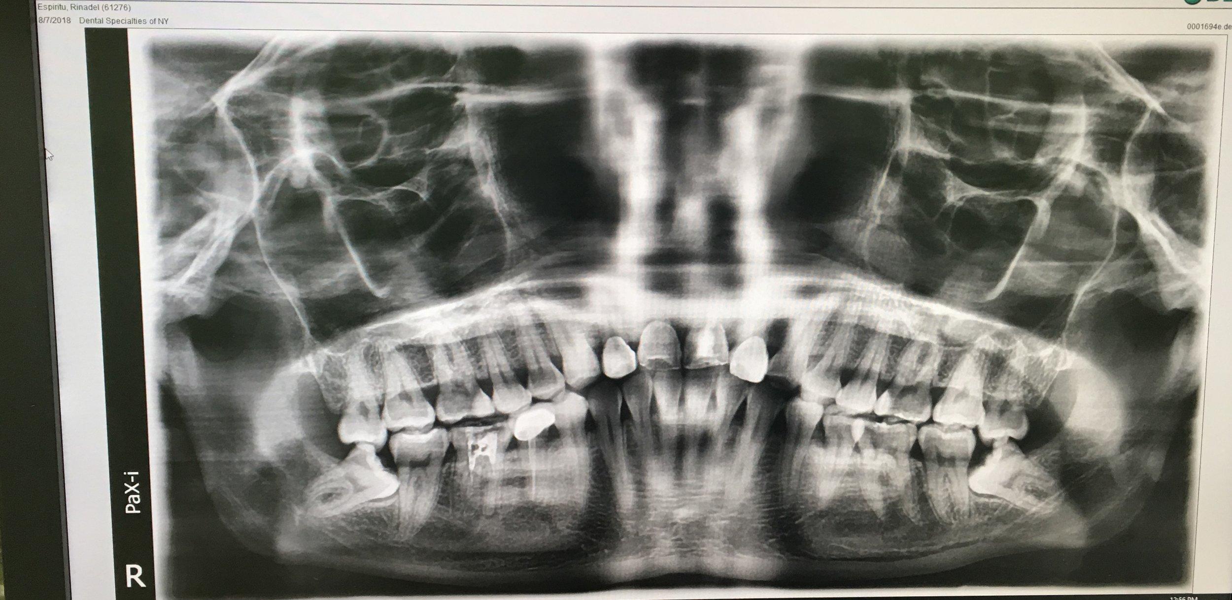 X-ray of my teeth ensemble as of 07/30/2018