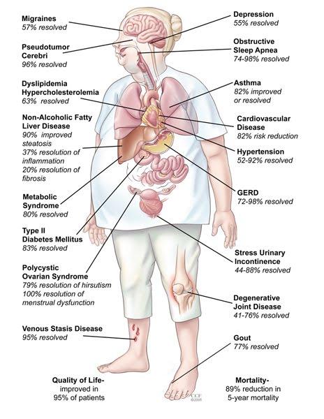 bariatric-surgery-benefits