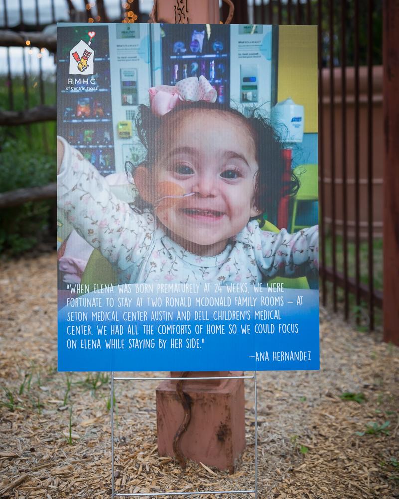 Elena born prematurally at 24 weeks