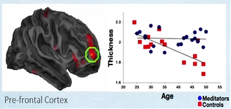 Meditators shows an increased cortical thickness in prefrontal areas which doesn't decrease with age (as it does for the control group).