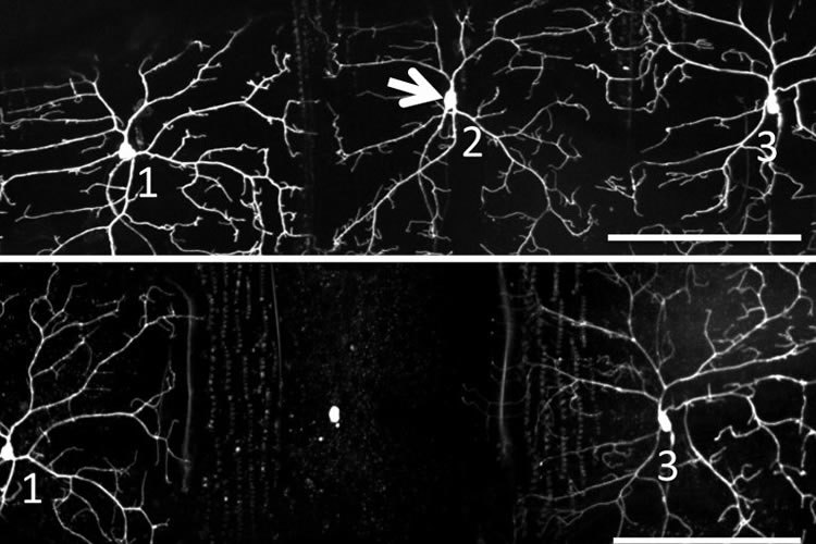 Neuron number two, before and after being shone on. Courtesy of Xiaokun Shu.