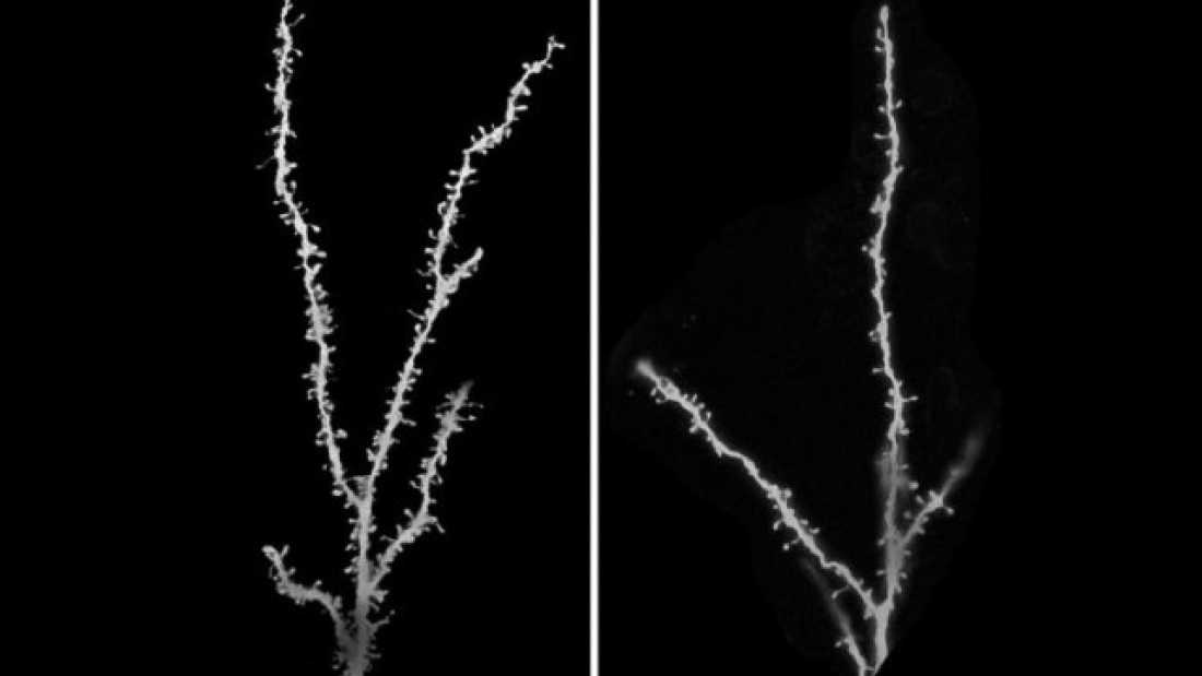 The small white blobs (=dendritic spines) are the connection sites of a neuron. Right: too many spines. Left: the autophagous protein is back in the game and the number of spines is reduced back to normal.  Credit:Guomei Tang, PhD and Mark S. Sonders, PhD/Columbia University Medical Center