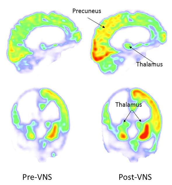 Left: PET scans (showing glucose metabolism and hence brain activity) before the vagus nerve stimulation. Right: PET scans after the stimulation showing increased brain activity in in the right parieto-occipital cortex and thalamus (all areas hypothesised to have something to do with consciousness). Corazzol, Lio et al., Current Biology (2017)