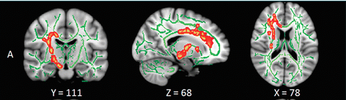 Red: white matter tracts where the integrity was disturbed in patients with primary insomnia. From https://pubs.rsna.org/doi/full/10.1148/radiol.2016152038