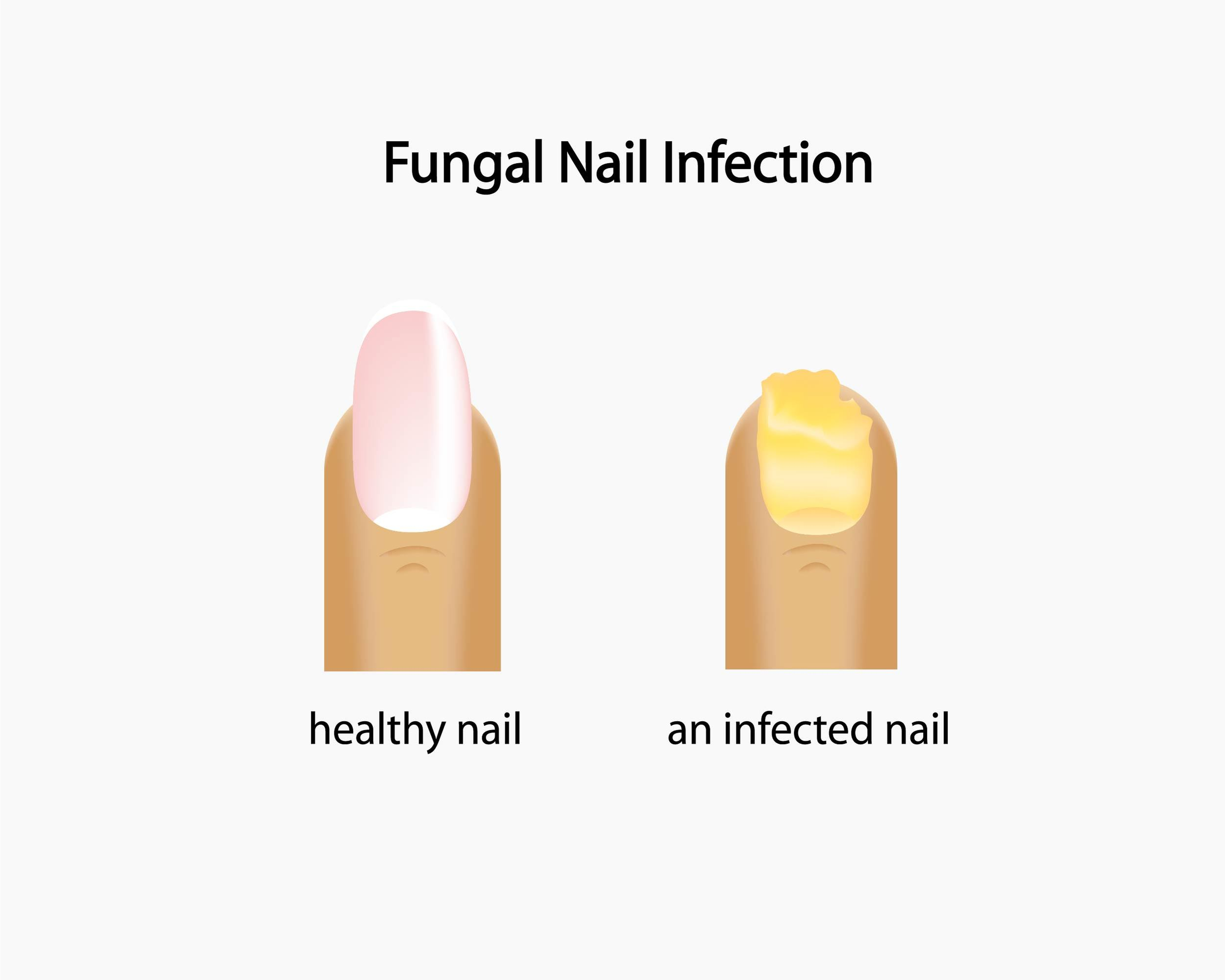 laser therapy fungal nails lebanon nj podiatrist