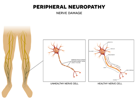 48215125_S_diabetes_peripheral_neuropathy_nerves_damage_legs_feet.jpg