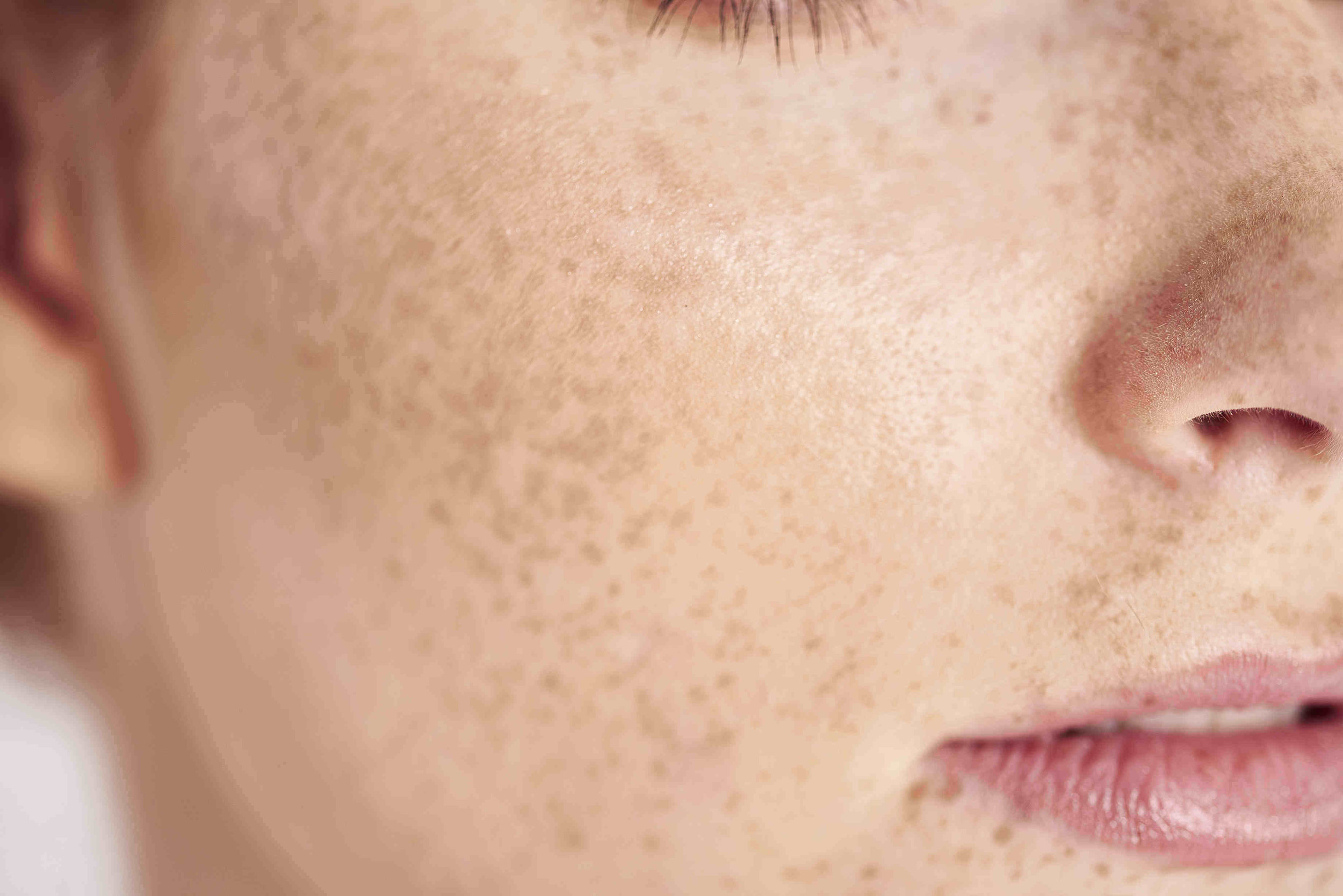 Pigment Preventers - Blocking tyrosinase (an enzyme responsible for melanin production) is crucial to impeding discoloration of the skin. There are a few inhibitors out there that you can use to do the blocking.