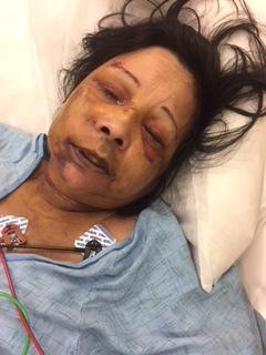 Debra in the hospital.