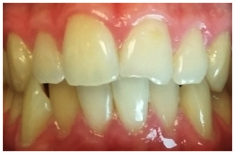 Chipped Front Teeth- Before Bonding
