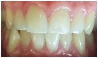 Chipped Front Teeth fixed with Composite Bonding (white fillings)