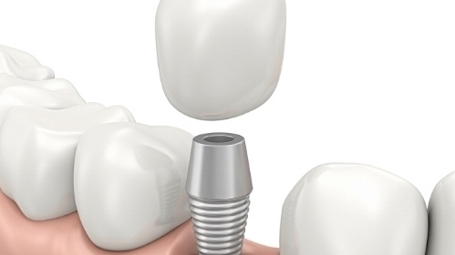 dental implants new westminster