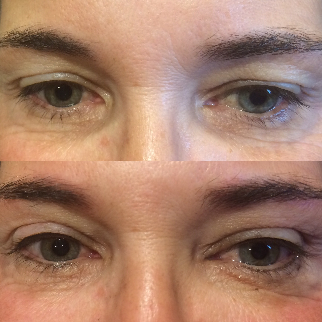 This client is very low maintenance, which is a great example of why permanent makeup can be so awesome! Now she will be able to wake up with just a little added oompf and no extra time in front of the mirror! BOOM.