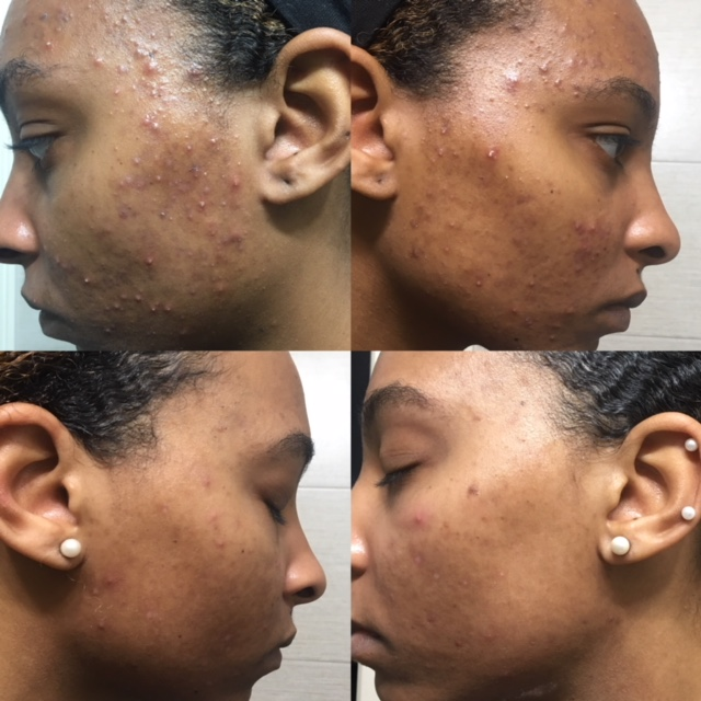 "Before (top, 3 months into treatment) & After (bottom, 6 months into treatment)  The ""After"" is the result of 6 months of weekly/biweekly Enzyme Facials and full DMK home care"