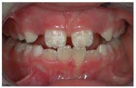 Insights on teeth defects from Plymouth, MN Dentist